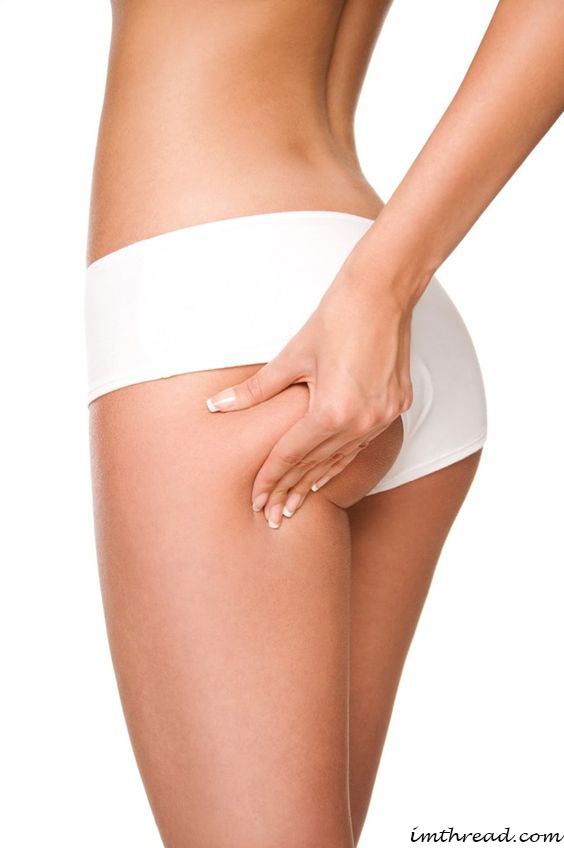 Simple Cellulite Treatment for Butts and Thighs