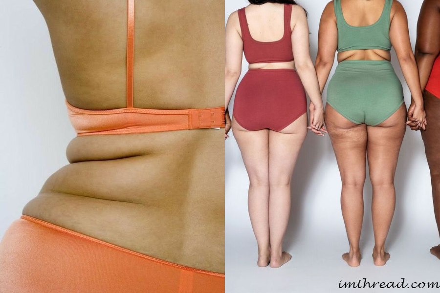 Simple Cellulite Treatment for Butts